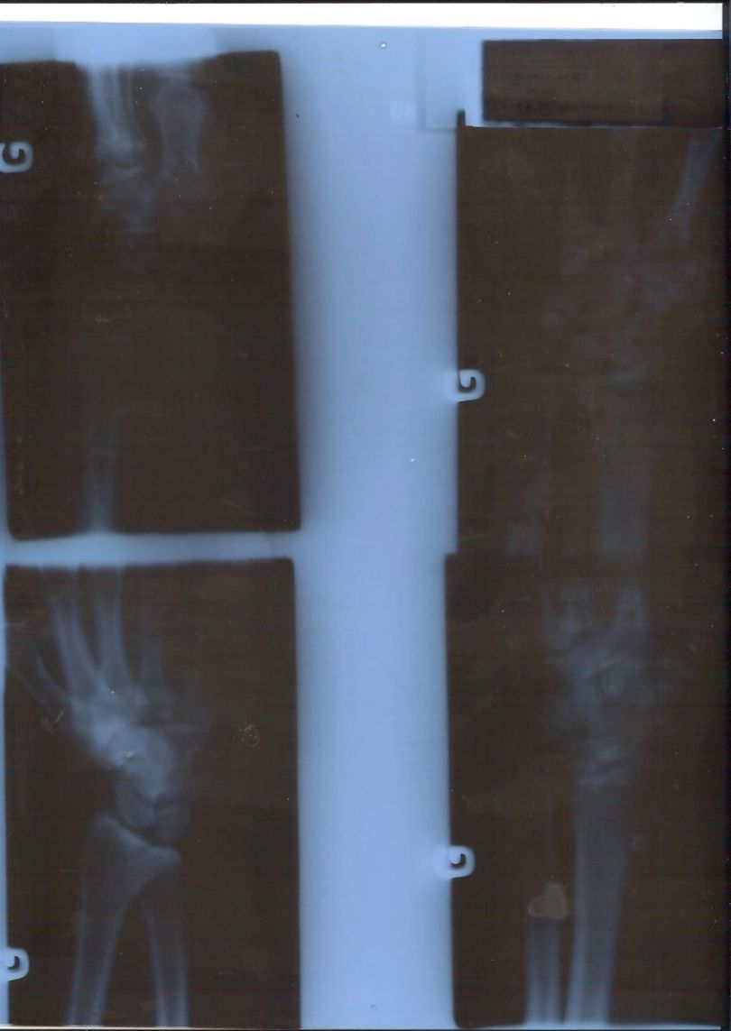 X-ray of a circus artists's hand